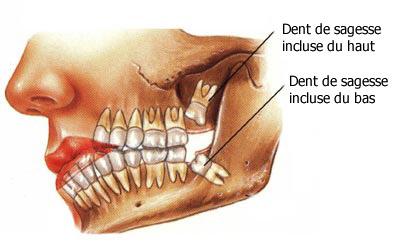 Extraction dents de sagesses